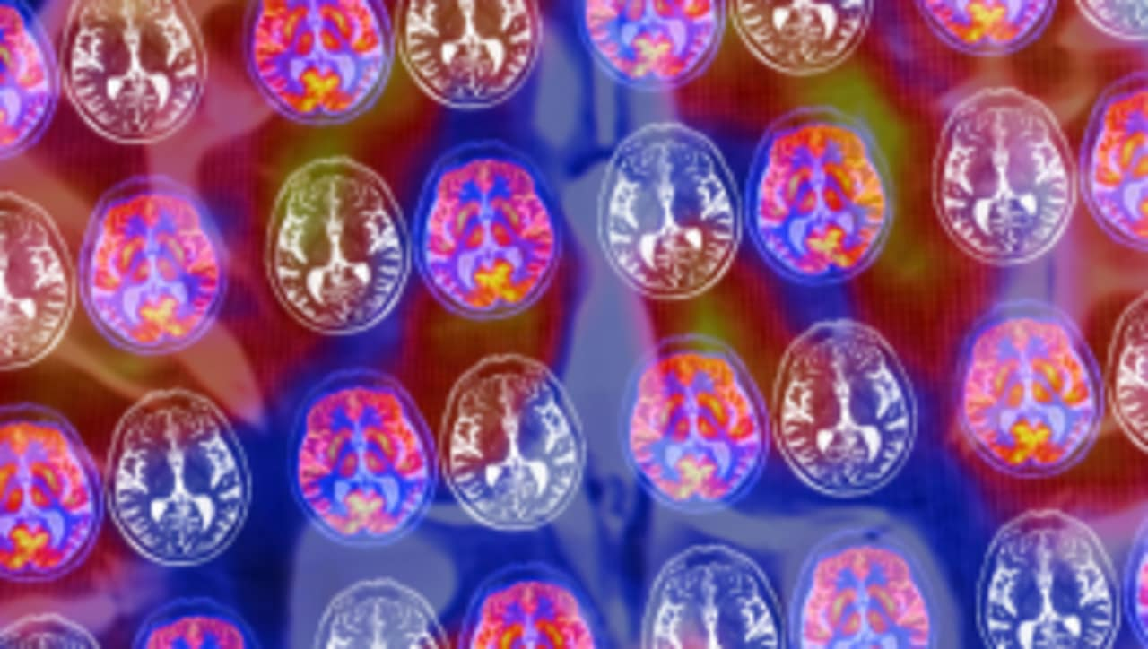 Everything You Believe Is Wrong: There Is No Such Thing As A Male Or Female Brain
