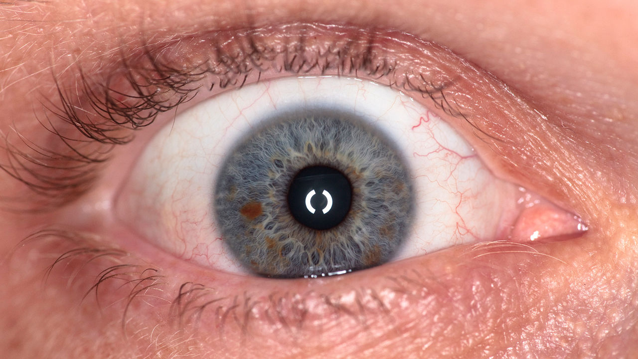 These Artificial Eyes Are Hauntingly Beautiful--And Made By A 3-D Printer