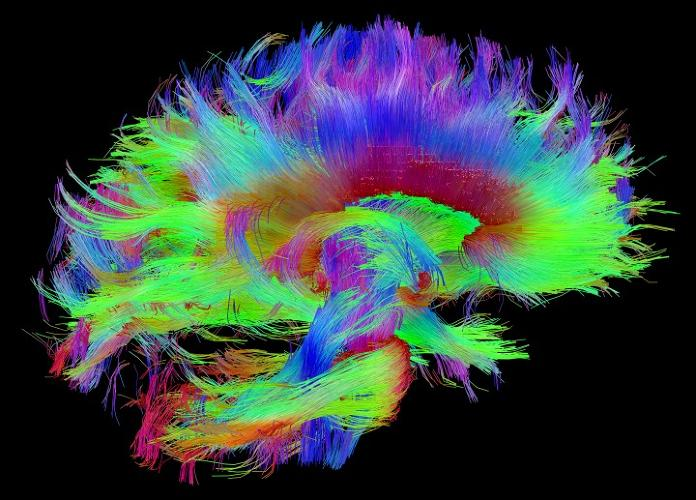 <p>That red bundle of fibers in the center represents the corpus callosum, which connects the two hemispheres of the brain. It's the brain's largest white matter structure.</p>