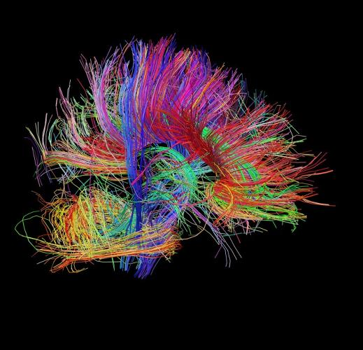<p>The project's goal would be to make something with a Google Maps-style resolution--interactive and many-layered, allowing scientists to not just see where certain brain function occurs, but how the anatomical structures underlying those functions are connected.</p>